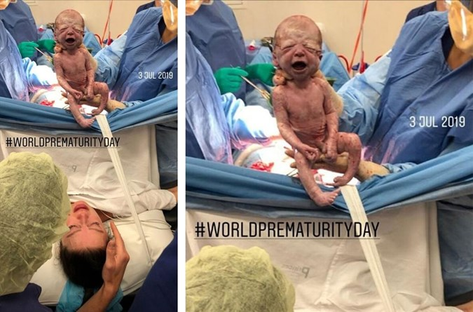 Despite being born 7 weeks early, Laila is a healthy baby now. Image: Instagram